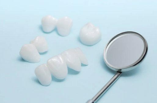 Dental Veneers, Cosmetic Dentistry in Tumwater, WA - Tyee Dental